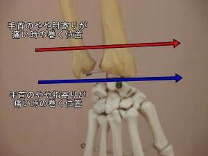 手首が痛い時の巻く位置