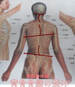 背骨骨盤の歪み