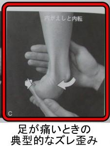 足が痛いときの内反になってズレる
