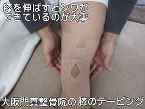 大阪門真整骨院の膝のテーピング