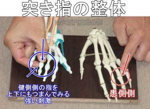 突き指の二点刺激法