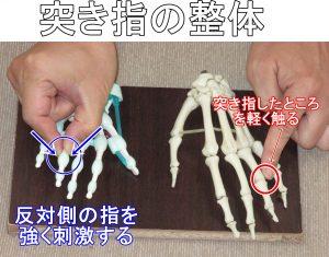 突き指の整体