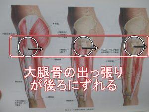 大腿骨の大転子が後ろにずれる