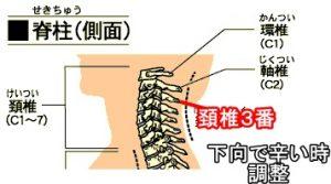頚椎3番下向きで辛い時緒性