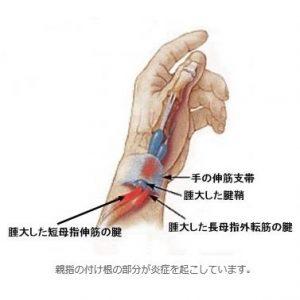 ドケルバン病は腱鞘炎