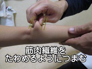筋繊維をたわめるようにつまむ