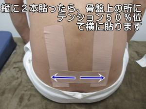 縦に2本貼ったら、骨盤上の所にテンション50%位で横に貼ります