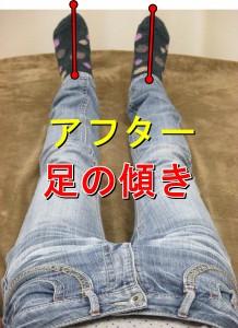 足の傾き整体後