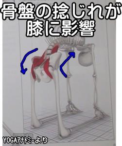 骨盤の捻じれが膝に影響