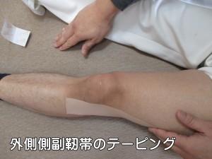 外側側副靭帯のテーピング完成