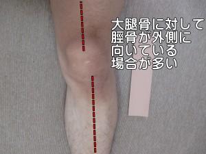 大腿骨に対して脛骨が外側に向いている場合が多い