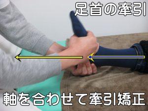 軸を合わせて足首牽引矯正