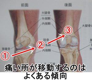 痛い所が移動するのは回復している傾向