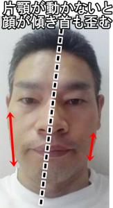 顎から顔の傾き首の歪みが生じる