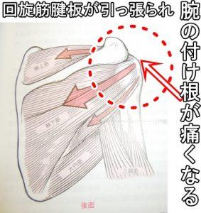 回旋筋腱板が引っ張られて腕の付け根が痛くなる