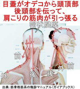 目蓋がオデコから頭頂部後頭部を伝って、肩こりの筋肉が引っ張る