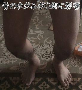 骨のゆがみがO脚に影響