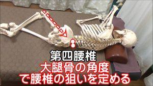 大腿骨の角度で腰椎矯正の狙いを定める