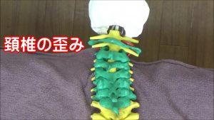 頚椎の歪み